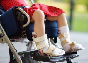 A child with leg braces